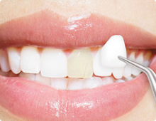 Dental Crowns/Veneers